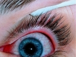 Research finds that antibiotics are unnecessarily prescribed for conjunctivitis in children