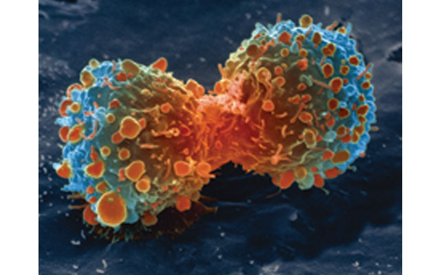 New discovery in understanding chemotherapy resistance could prevent cancer cells fighting back, says study