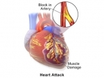 Low iron levels may increase risk of heart disease, says study