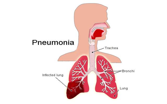 "This World Pneumonia Day, the Indian Academy of Pediatrics calls for ""No More Pneumonia"""
