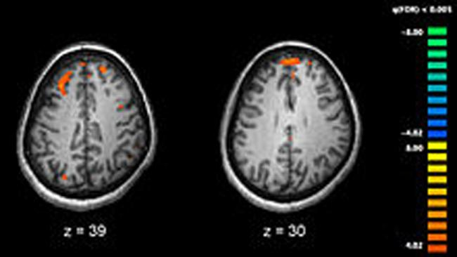 "Schizophrenia originates early in pregnancy, ""mini-brain"", research suggests"