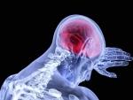 Stroke doubles dementia risk, concludes large-scale study