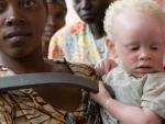 Albinism: UN official welcomes latest developments in 'landmark' Malawi murder case