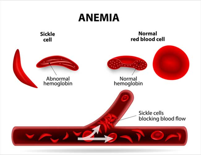 5Things You Should Know About Sickle Cell Anaemia