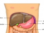A poop test for Liver Cirrhosis, says study