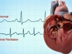 Exercise may improve memory in heart failure patients: Study