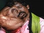 Bengaluru doctors remove 8kg plus tumor from Odisha man's face