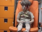 Syria conflict: Image of injured boy goes viral, receives shocked expressions
