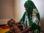 Somalia: 1.4M children to suffer acute malnutrition this year – UN agency