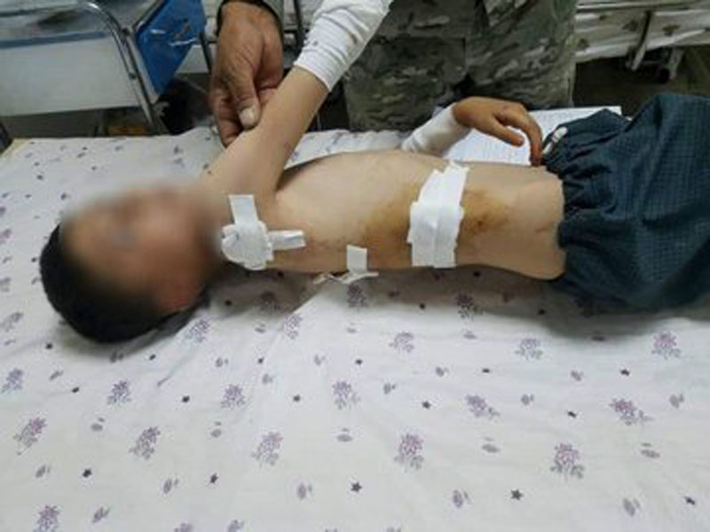 Afghanistan: Taliban terrorists fire seven mortars on Maimana City which kills 1 civilian, leaves a child hurt